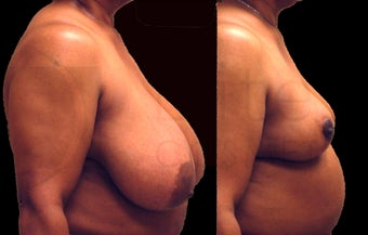 Large breast reduction before 1141922