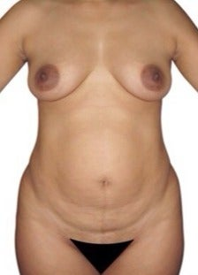 45-54 year old woman treated with Mommy Makeover before 1634686
