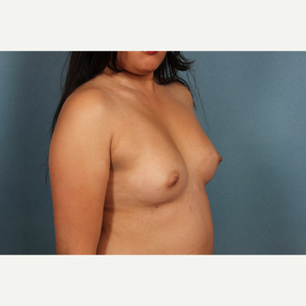 35-44 year old woman treated with Breast Augmentation before 3253593