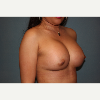 35-44 year old woman treated with Breast Augmentation after 3253593