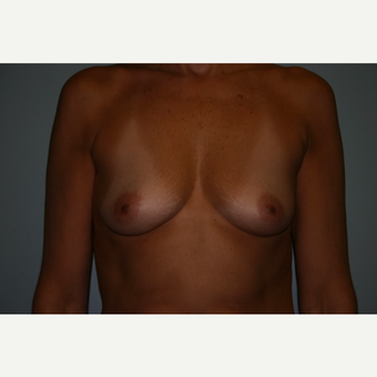 35-44 year old woman treated with Breast Augmentation before 3340039