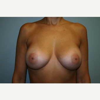 35-44 year old woman treated with Breast Augmentation after 3340039