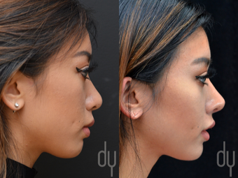 Asian Rhinoplasty with Rib cartilage