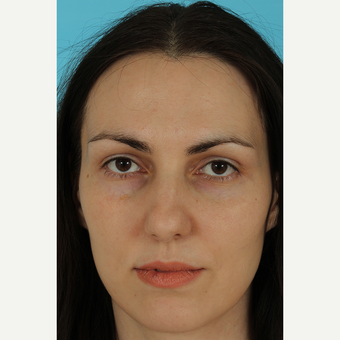 25-34 year old woman treated with Rhinoplasty before 3690793