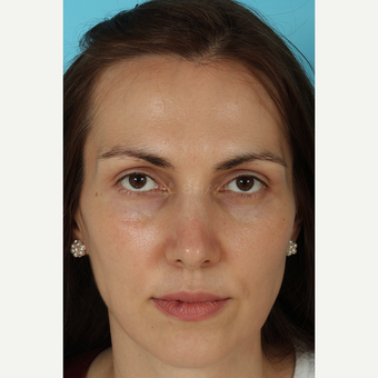 25-34 year old woman treated with Rhinoplasty after 3690793