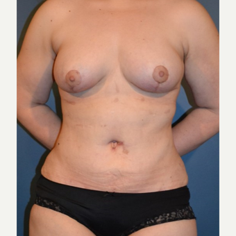 35-44 year old woman treated with Tummy Tuck after 3132130