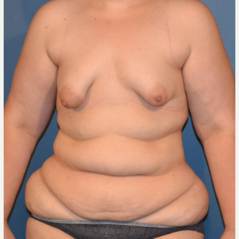 35-44 year old woman treated with Tummy Tuck before 3132130