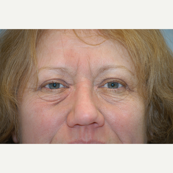 55-64 year old woman treated with Eyelid Surgery before 3412313