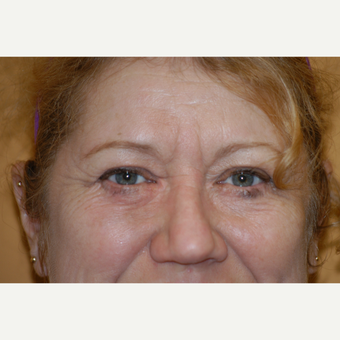 55-64 year old woman treated with Eyelid Surgery after 3412313