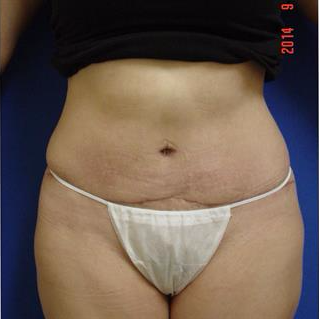 35-44 year old woman treated with Liposuction after 3285109