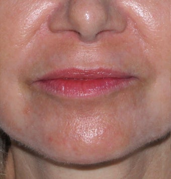 55 year old female with lip lines and lines around the mouth treated with CO2 and Erbium lasers after 1287645