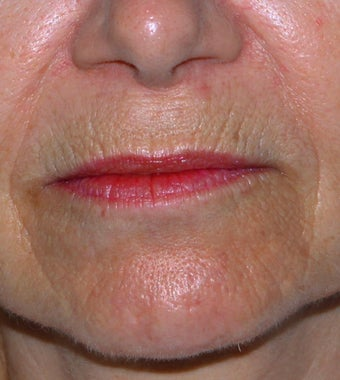 55 year old female with lip lines and lines around the mouth treated with CO2 and Erbium lasers before 1287645