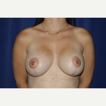 25-34 year old woman treated with Breast Lift with Implants after 3164855