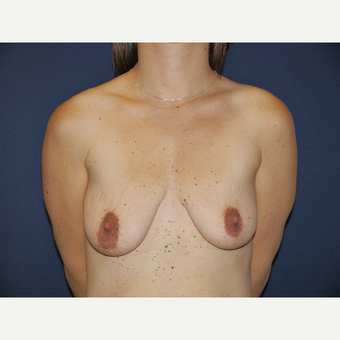 25-34 year old woman treated with Breast Lift with Implants before 3164855