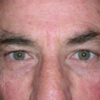 55-64 year old man treated with Eyelid Surgery after 1858984