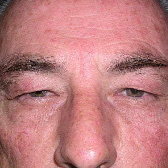 55-64 year old man treated with Eyelid Surgery before 1858984