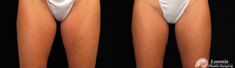 CoolSculpting® of the Inner Thighs before 1459111