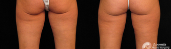 CoolSculpting® of the Inner Thighs after 1459111