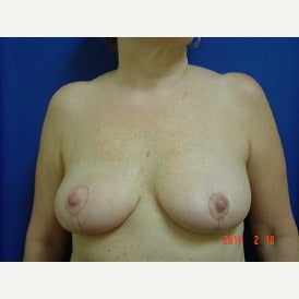55-64 year old woman treated with Breast Lift after 1544803