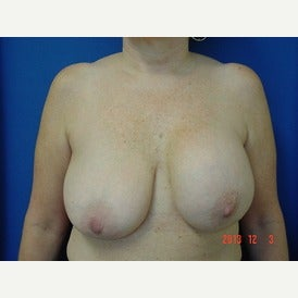 55-64 year old woman treated with Breast Lift before 1544803