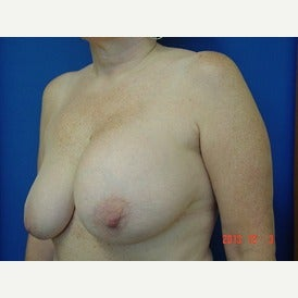 55-64 year old woman treated with Breast Lift 1544803