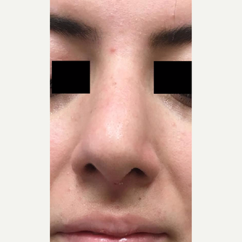 18-24 year old man treated with Nose Surgery after 3809210
