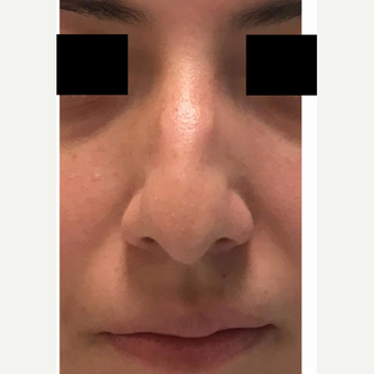 18-24 year old man treated with Nose Surgery before 3809210