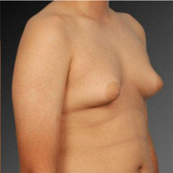 Male Breast Reduction before 2808056