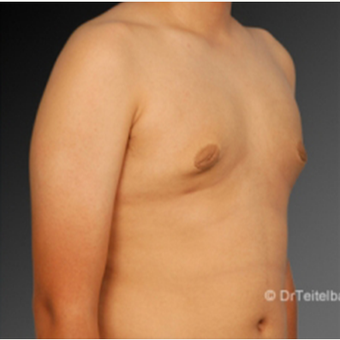Male Breast Reduction after 2808056