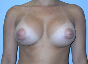 Breast Augmentation 400 cc Silicone Implants after 90233