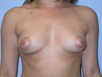 Breast Augmentation 400 cc Silicone Implants before 90233