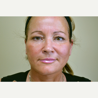 45-54 year old woman treated with Facelift after 3741400
