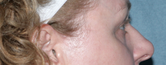 Laser Skin Resurfacing Around Eye Area after 1064643