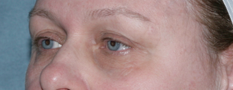 Laser Skin Resurfacing Around Eye Area 1064643