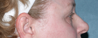 Laser Skin Resurfacing Around Eye Area before 1064643
