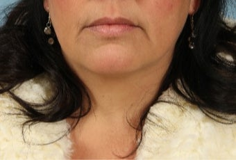 45-54 year old woman treated with Lip Implants before 3615546
