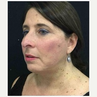 55-64 year old woman treated with Facelift after 3088080