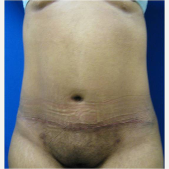 35 year old woman treated with Tummy Tuck after 3726745