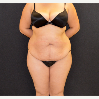 This patient underwent Dr. Frank Campanile Patented drainless CLASS Tummy Tuck