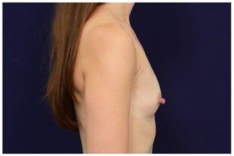 Breast Augmentation before 1326164