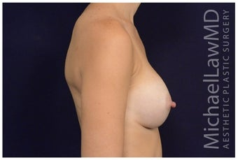 Breast Augmentation after 1326164