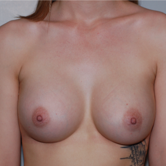 18-24 year old woman treated with Breast Augmentation after 3524645
