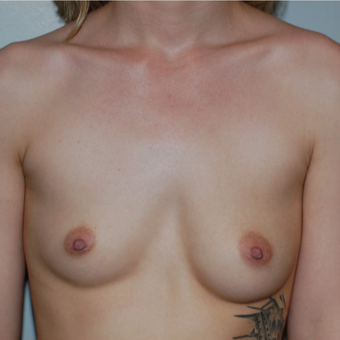 18-24 year old woman treated with Breast Augmentation before 3524645