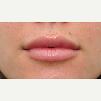 18-24 year old woman treated with Juvederm after 2959175