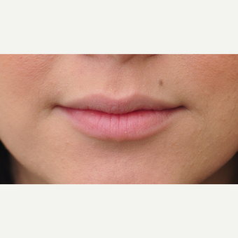 18-24 year old woman treated with Juvederm before 2959175