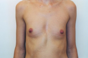 Breast asymmetry correction with Breast Augmentation before 3103556