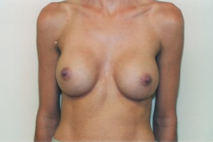 Breast asymmetry correction with Breast Augmentation after 3103556