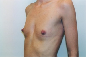 Breast asymmetry correction with Breast Augmentation 3103556
