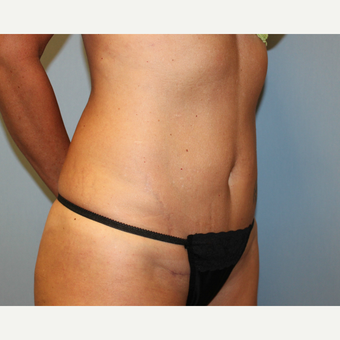 35-44 year old woman treated with Tummy Tuck after 3815719