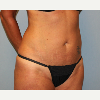 35-44 year old woman treated with Tummy Tuck before 3815719